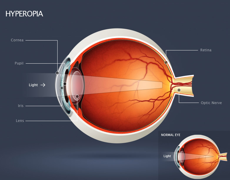 Hyperopia or long sightedness