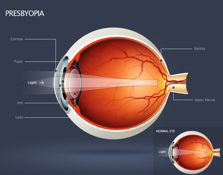 Personalised treatment for patients with presbyopia at Whitehouse Optometrists.