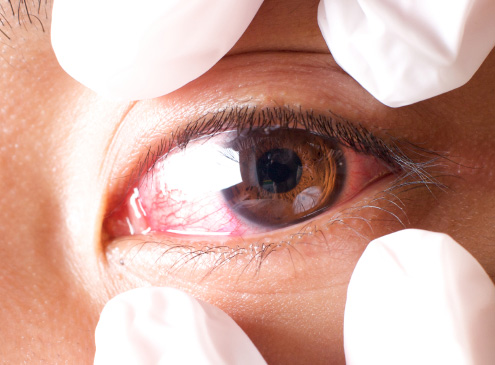 We provide preventive eye care to reduce the risks of eye diseases.